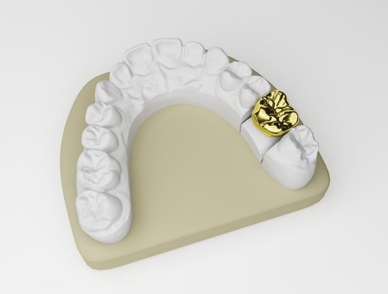 Dental identification degree benefits forensics studies